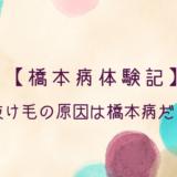 橋本病体験記 抜け毛の原因